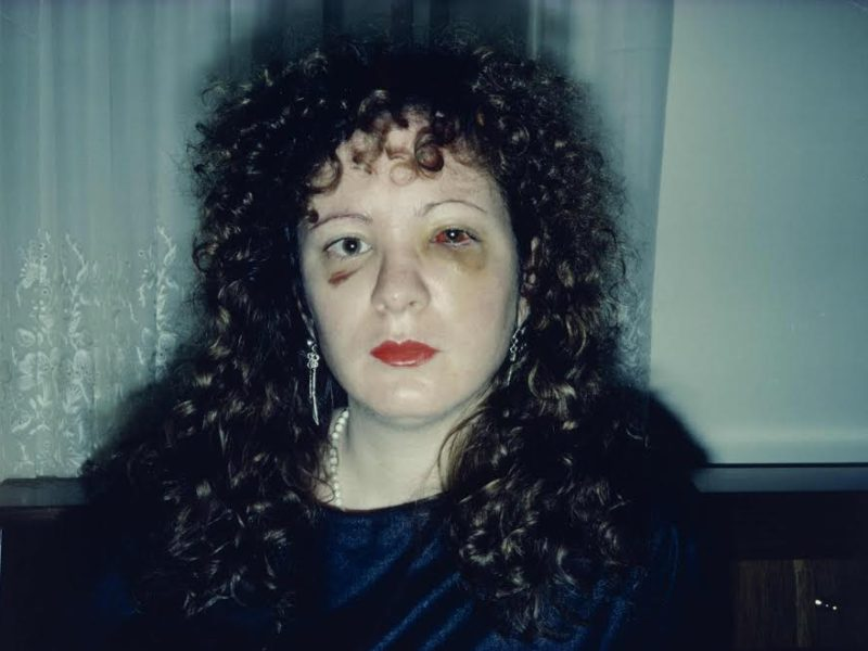 Nan One Month After Being Battered, 1984